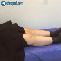 بيمار خانم ٦٥ ساله ٦ ماه پس از تعويض مفصل هر دو زانو