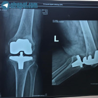 بیمار خانم ۷۵ساله که ۱۵سال پیش تعویض مفصل شده وهم اکنون بدنبال افتادن درد زانو پیدا کرده که کامپوننت تیببا لوز شده وتحت عمل رویژن قرار گرفته
