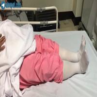 ٤٨ ساعت بعد از عمل تعويض مفصل هر دو زانو 48 hours after total knee Replacement