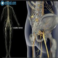 سوال یکی از بیمارانسیاتیک چیست؟عصب سیاتیک از جمله بزرگترین و طولانی ترین عصب ها در بین اعصاب بدن می باشد که در عین حال درگیری ان می تواند برای بیماربسیار درد سرساز هم باشد عصب سياتيك که از ناحیه تحتانی ستون مهره ها و از مجاورت دیسک های پایینی کمر منشا گرفته و به سمت استخوان لگن و با سن امتداد می یابد و سپس از پشت ران وارد ساق پا می شود عصب سیاتیک وقتی درگیر می شود ممکن است هر نقطه ای از عصب درد را نشان دهد در شرایطی که بقیه قسمت ها فاقد درد باشد با توجه به اینکه رگ سیاتیک در پشت ساق پا به دو شاخه تقسیم می شود، یکی از پشت ساق پا به کف پا می رود ودیگری از کناره خارجی ساق و روی مچ پا می گذرد ، بنابراین ممکن است فردی دارای درد تنها در قسمت خارجی ساق پا و بدون کمر درد باشد اما علت ، درد سیاتیکی است