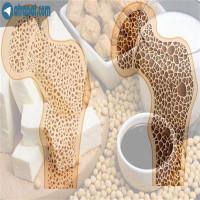 شناخت پوکی استخوان:ضعف و درد عضلانی و اسکلتیاختلال راه رفتندرد مفاصل مشکلات ناخنشکستگی استخوانها