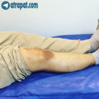 بيمار اقاي ٦٥ ساله ١٢ روز بعد از عمل تعويض مفصل زانو